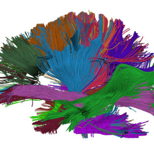 The DIPY framework maps pathways in the brain